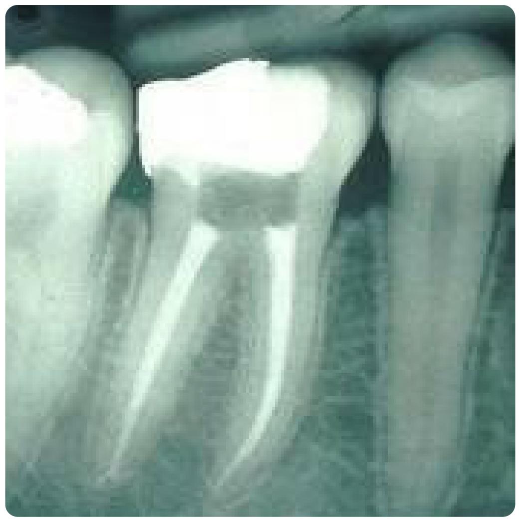 Endodoncia-03