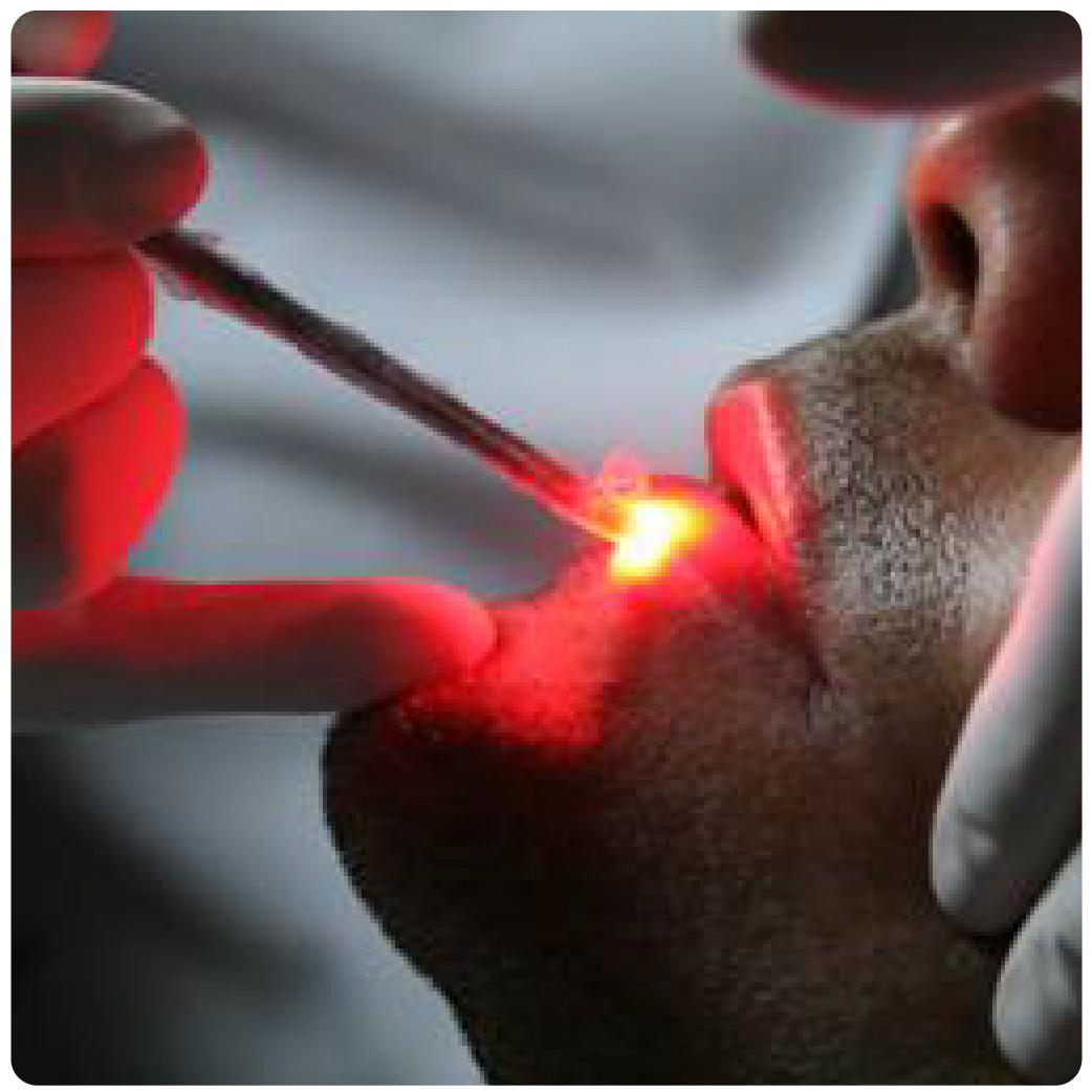 Laser terapia-03