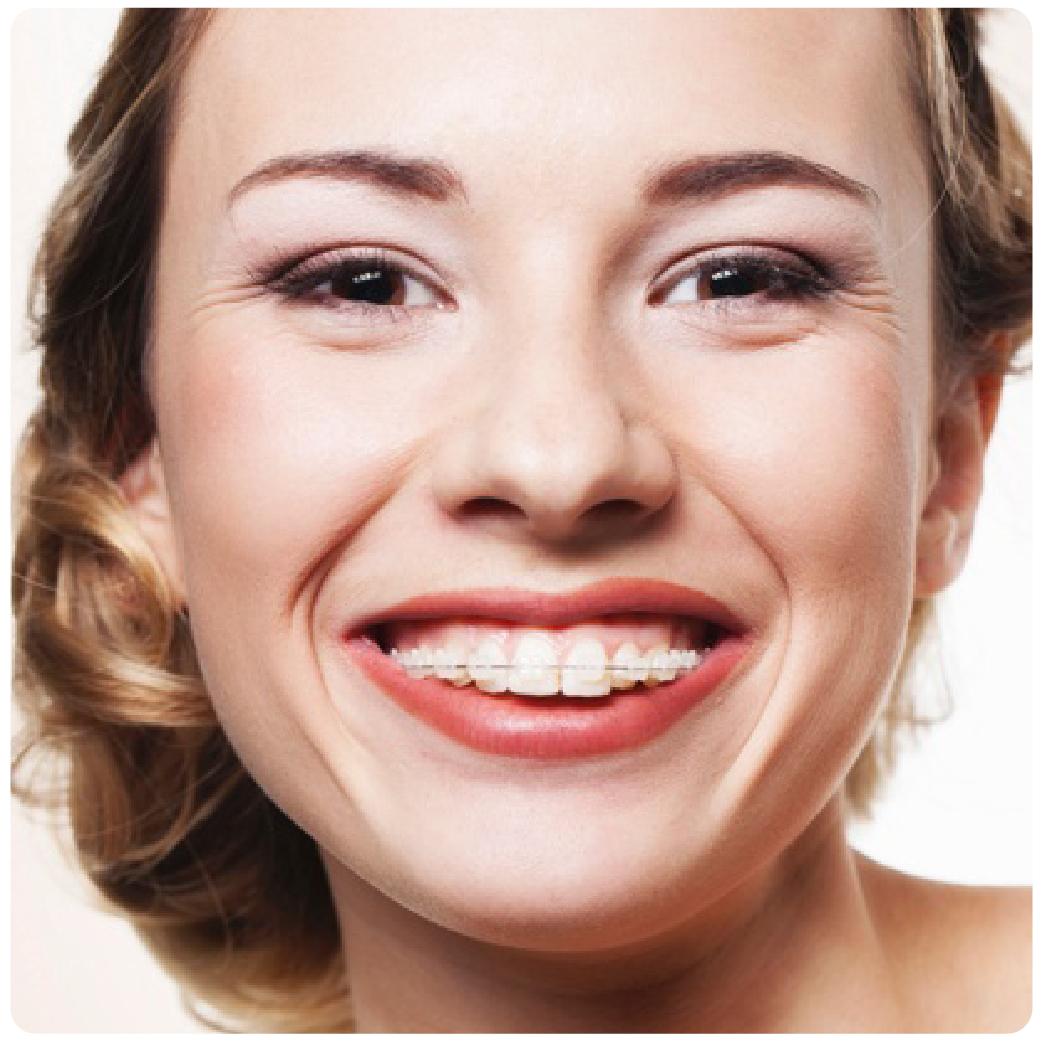 ortodoncia-01