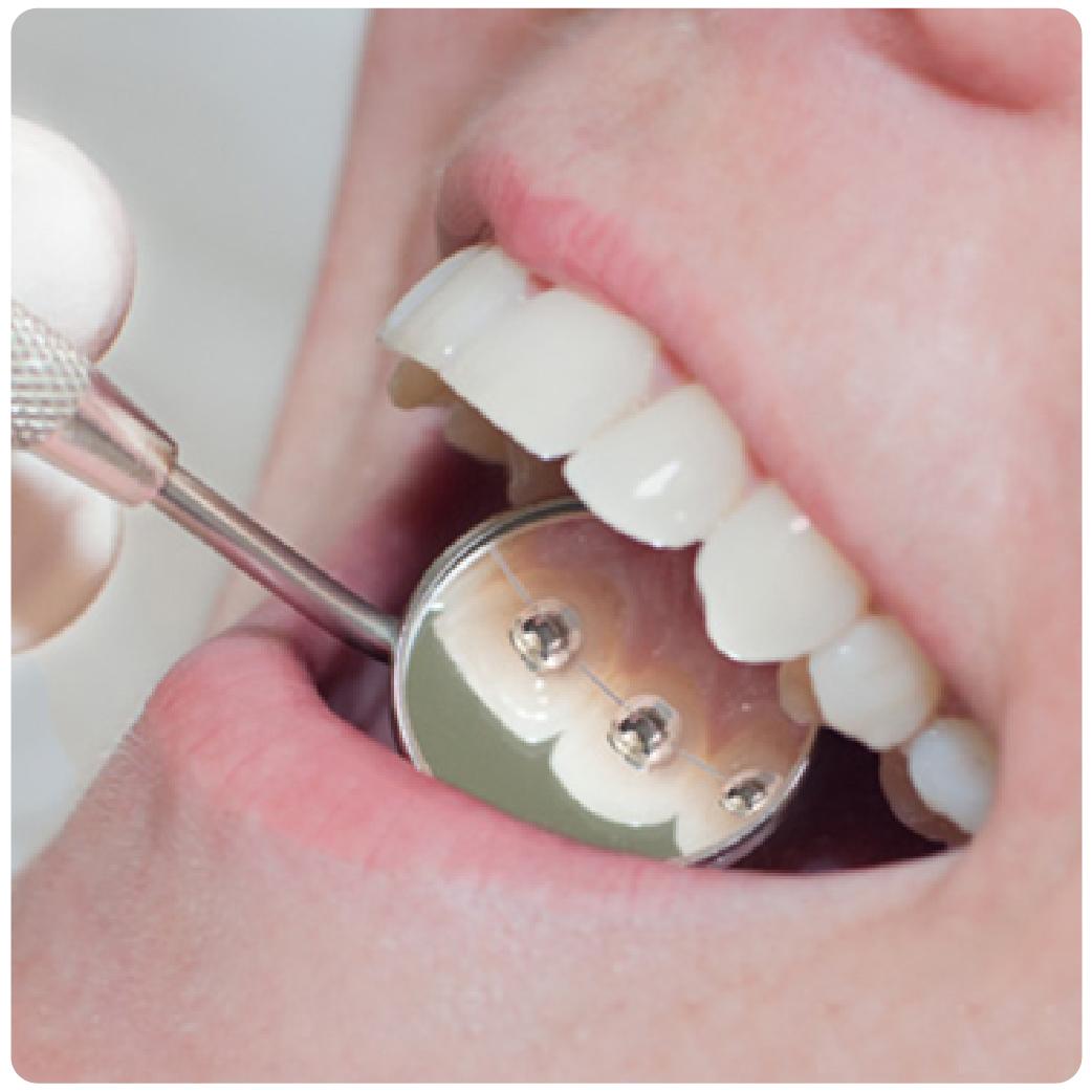 ortodoncia-02