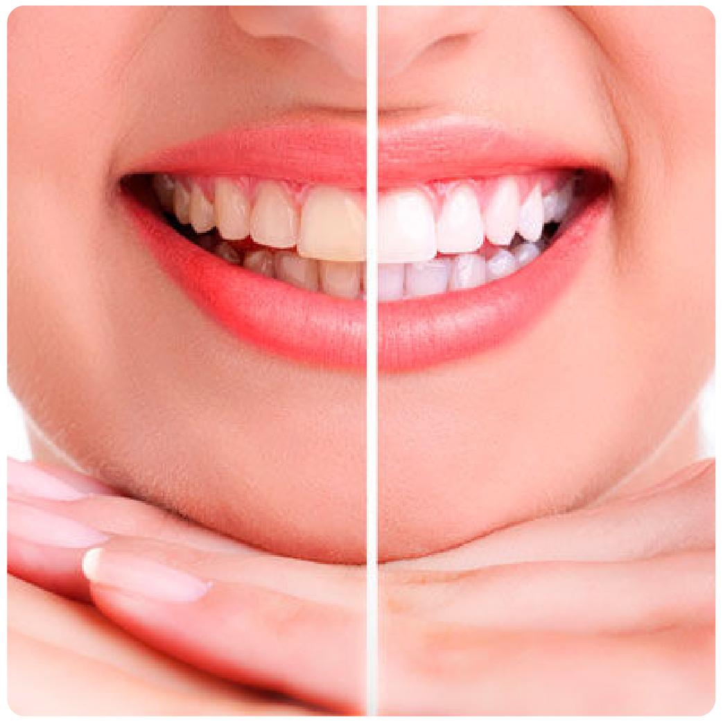rehabilitación oral-02